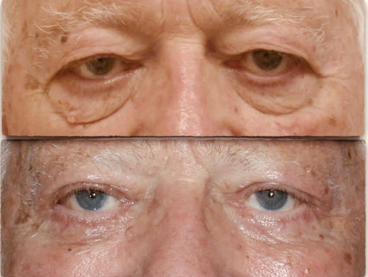 Eyelid Surgery | Daytona Beach, FL | Dr  Samson