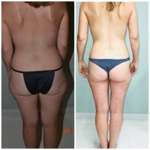 Liposuction Before and After Daytona Beach, Best Liposuction Surgeon Daytona Beach, Top Plastic Surgeon Daytona Beach, Port Orange Plastic Surgeon