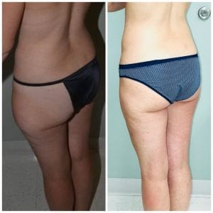 Liposuction Before and After Daytona Beach, Best Liposuction Surgeon Daytona Beach, Top Plastic Surgeon Daytona Beach, Port Orange Plastic Surgeon, Mommy Makeover Daytona Beach. Breast Augmentation Daytona Beach, Best Breast Augmentation Surgeon Daytona Beach, Affordable Breast Augmentation Daytona Beach
