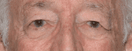 Facelift Daytona Beach, Eyelid Surgery Daytona Beach, Plastic Surgeon Daytona Beach Eyelift, Bleph Surgery Port Orange, Blepharoplasty Surgeon Daytona Beach, Eyelid Lift, Facelift Daytona Beach, Ormond Beach Eyelift and Facelift, Board Certified Plastic Surgeon Daytona Beach, Dr. Samson Facelift Reviews