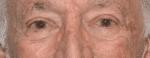 Facelift Daytona Beach, Eyelid Surgery Daytona Beach, Plastic Surgeon Daytona Beach Eyelift, Bleph Surgery Port Orange, Blepharoplasty Surgeon Daytona Beach, Eyelid Lift, Facelift Daytona Beach, Ormond Beach Eyelift and Facelift, Board Certified Plastic Surgeon Daytona Beach, Dr. Samson Facelift Reviews