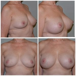 Breast Augmentation Daytona Beach Breast Augmentation Breast Augmentation Port Orange Ormond Beach Breast Augmentation Before and After Breast Augmentation Daytona Beach Before and After Breast Augmentation Port Orange Before and After Breast Augmentation Ormond Beach Best Breast Augmentation Plastic Surgeon Volusia County Dr. Samson Breast Augmentation Before and After Breast Aug Plastic Surgeon Near Me