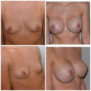 Best Breast Augmentation Surgeon