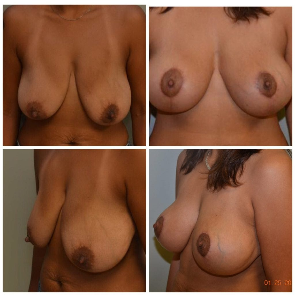 Breast Reduction Daytona Beach Breast Reduction Breast Reduction Port Orange Ormond Beach Breast Reduction Before and After Breast Reduction Daytona Beach Before and After Breast Reduction Port Orange Before and After Breast Reduction Ormond Beach Best Breast Reduction Plastic Surgeon Volusia County Dr. Samson Breast Reduction Before and After Breast Reduction Plastic Surgeon Near Me