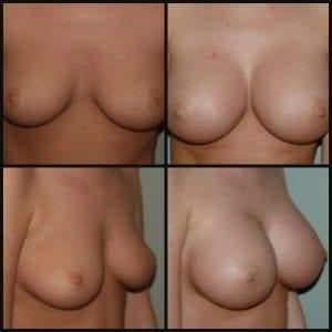 Breast Augmentation Surgery Cost Breast Augmentation Recovery Breast Augmentation Florida Breast Augmentation Natural Gummy Bear Implants Natrelle Inspira Gel Implants
