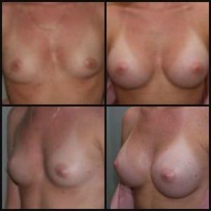 Breast Augmentation Ormond Beach