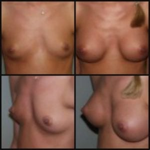 Breast Augmentation Daytona Beach Breast Augmentation Breast Augmentation Port Orange Ormond Beach Breast Augmentation Before and After Breast Augmentation Daytona Beach Before and After Breast Augmentation Port Orange Before and After Breast Augmentation Ormond Beach Best Breast Augmentation Plastic Surgeon Volusia County Dr. Samson Breast Augmentation Before and After Breast Aug Plastic Surgeon Near Me Breast Augmentation Surgery Cost Breast Augmentation Recovery Breast Augmentation Florida