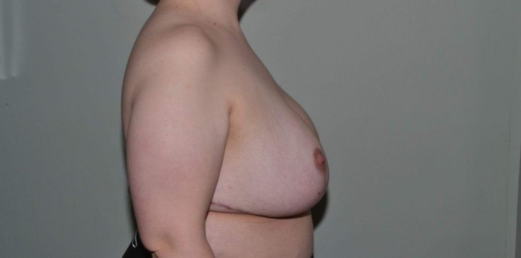 Breast Reduction Daytona Beach, Port Orange Breast Reduction