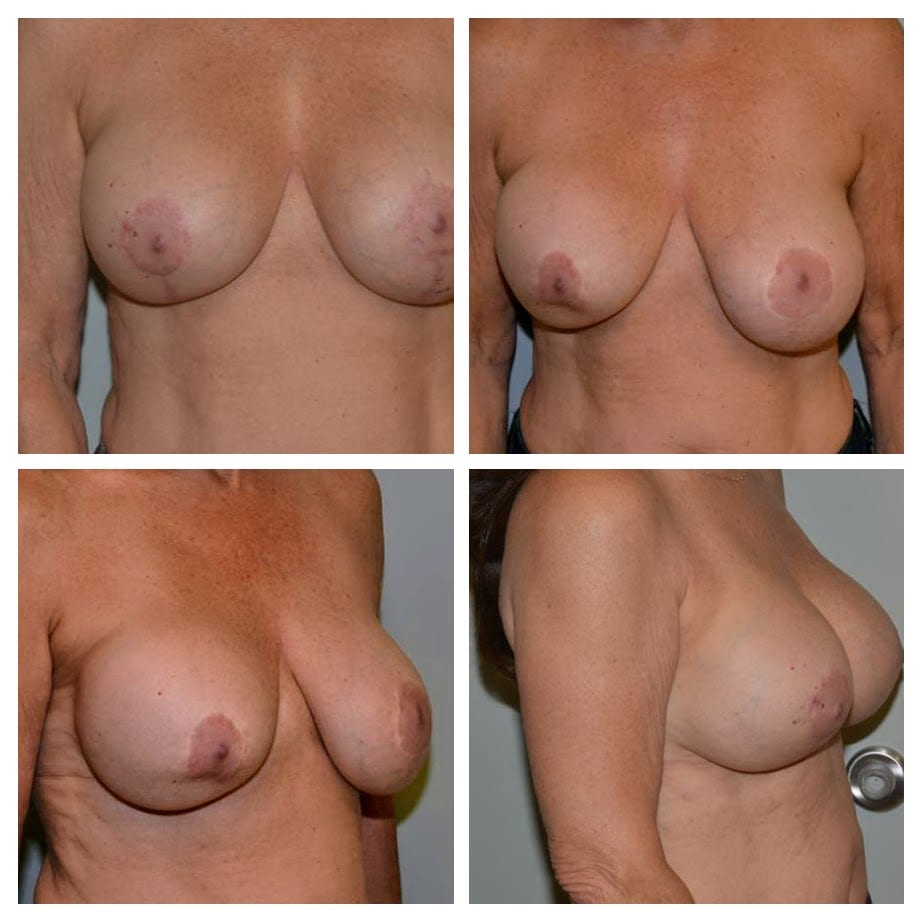 Breast Lift and Reconstruction