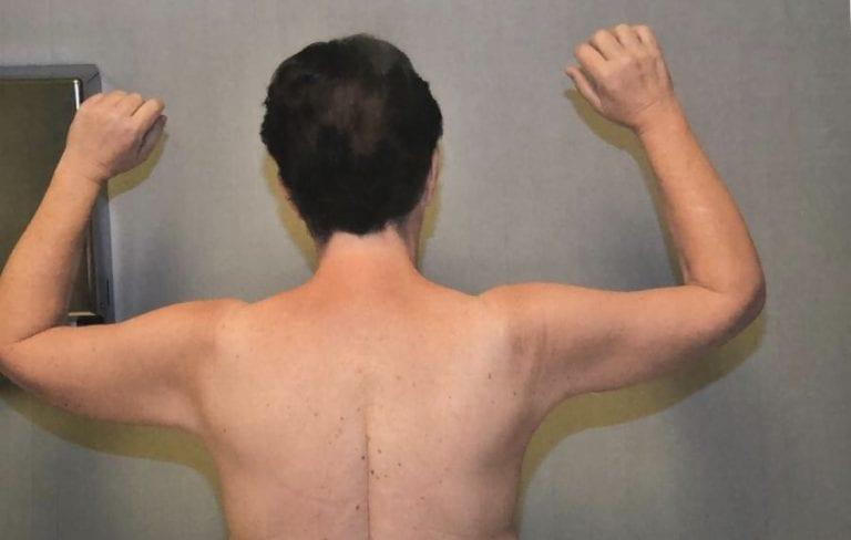 Brachioplasty/Arm Lift