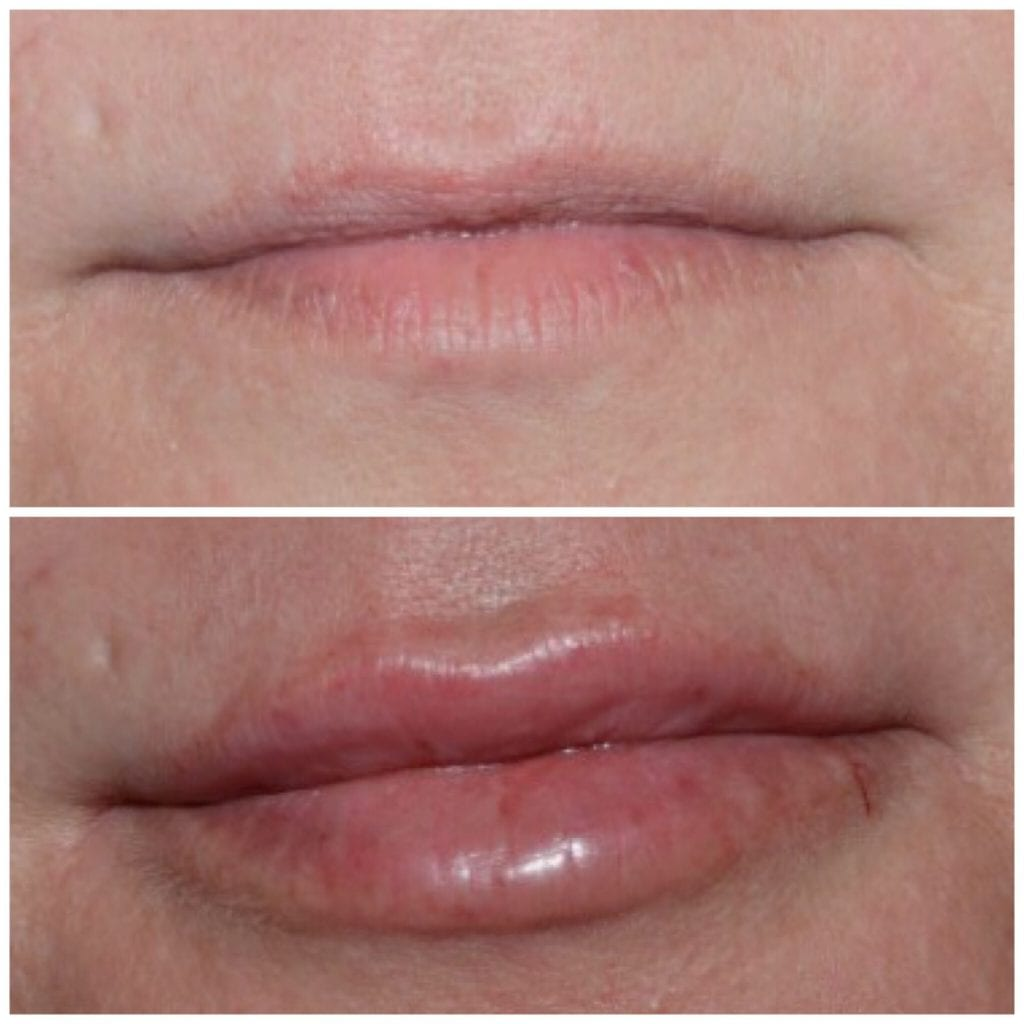 Cost of Lip Filler, Cost of Lip Injections