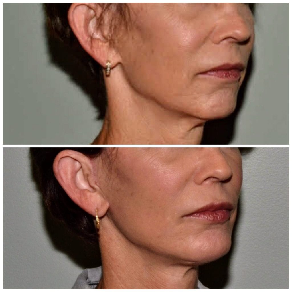 Facelift Daytona Beach Facelift Facelift Port Orange Ormond Beach Facelift Before and After Facelift Daytona Beach Before and After Facelift Port Orange Best Facelift Plastic Surgeon Volusia County Dr. Samson Facelift Before and After Facelift Plastic Surgeon Near Me