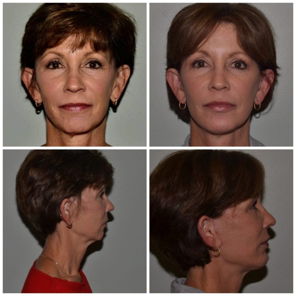 Facelift Daytona Beach Ormond Beach Facelift Port Orange Facelift