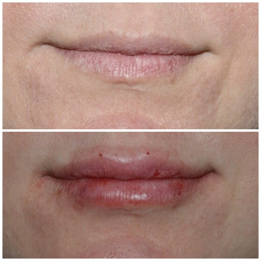 Lip Injections/Lip Filler/Juvederm Daytona Beach Lip Filler Injections Juvederm Lip Filler Injections Juvederm Port Orange Ormond Beach Lip Filler Injections Before and After Lip Filler Daytona Beach Before and After Lip Injections Port Orange Before and After Lip Filler Injections Ormond Beach Best Lip Filler Plastic Surgeon Volusia County Dr. Samson Lip Fillers Before and After Lip Fillers Plastic Surgeon Near Me Botox Bar Juvederm Injections Daytona Beach