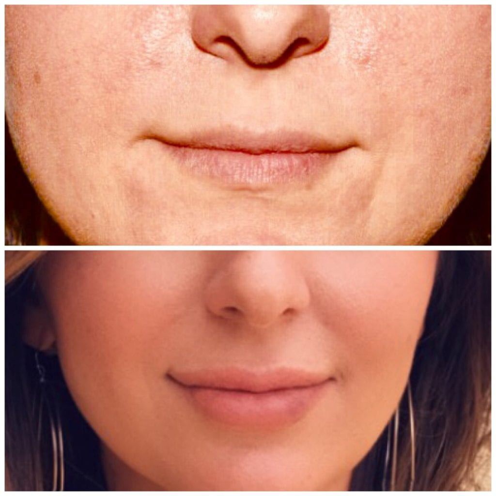 Lip Injections/Lip Filler/Juvederm