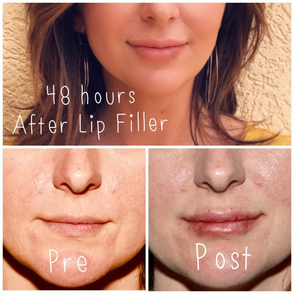 Lip Filler Cost, Best Lip Filler Injector
