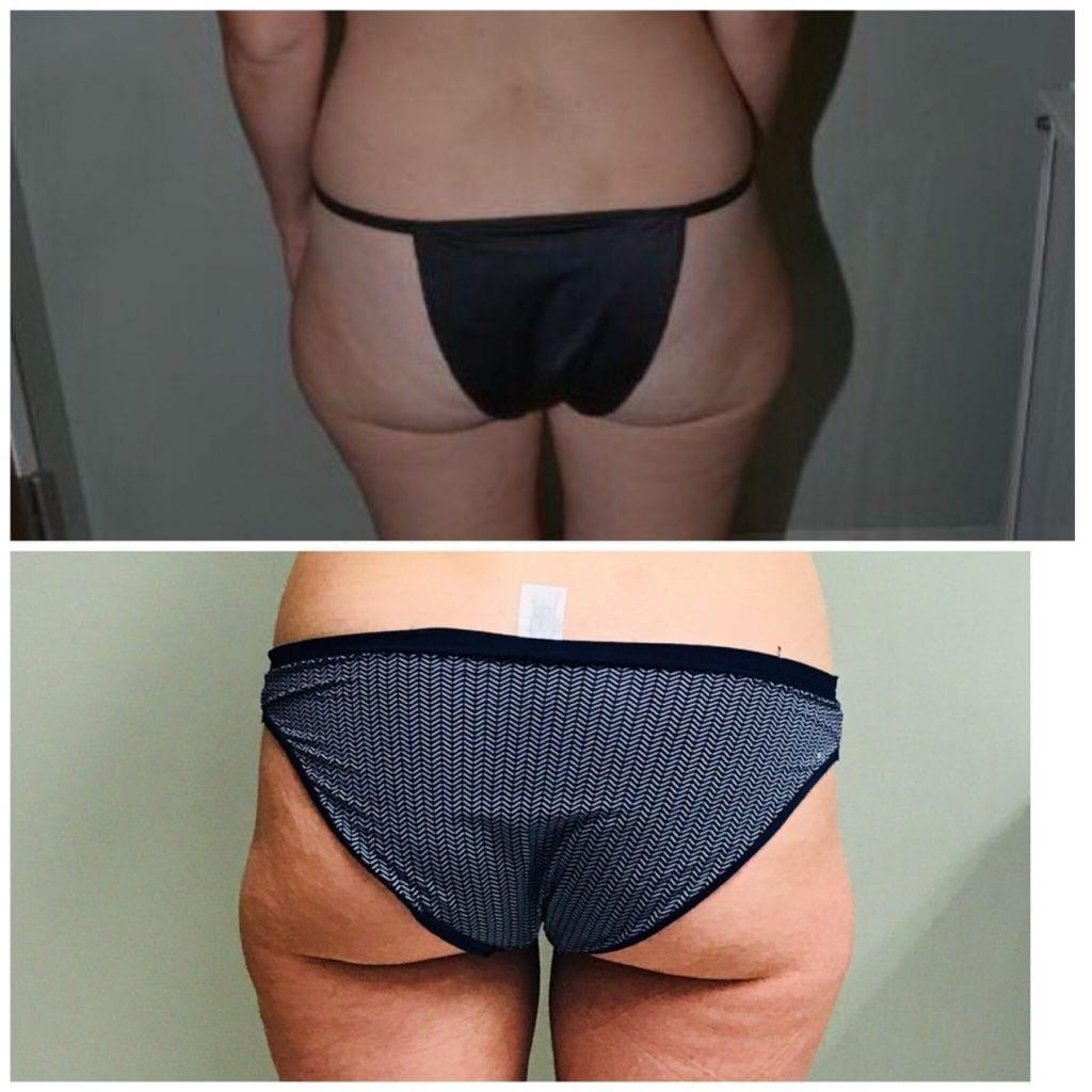 Lipo Butt, Liposuction Thighs, Liposuction Saddlebags, Lipo for Hips