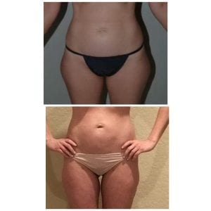 CoolSculpting Lipo