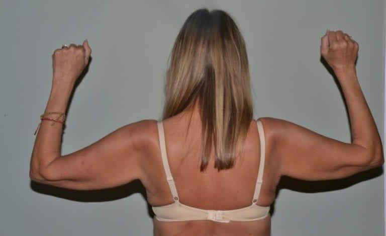Arm Lift Daytona Beach Port Orange Brachioplasty Arm Lift Ormond Beach Brachioplasty/Arm Lift