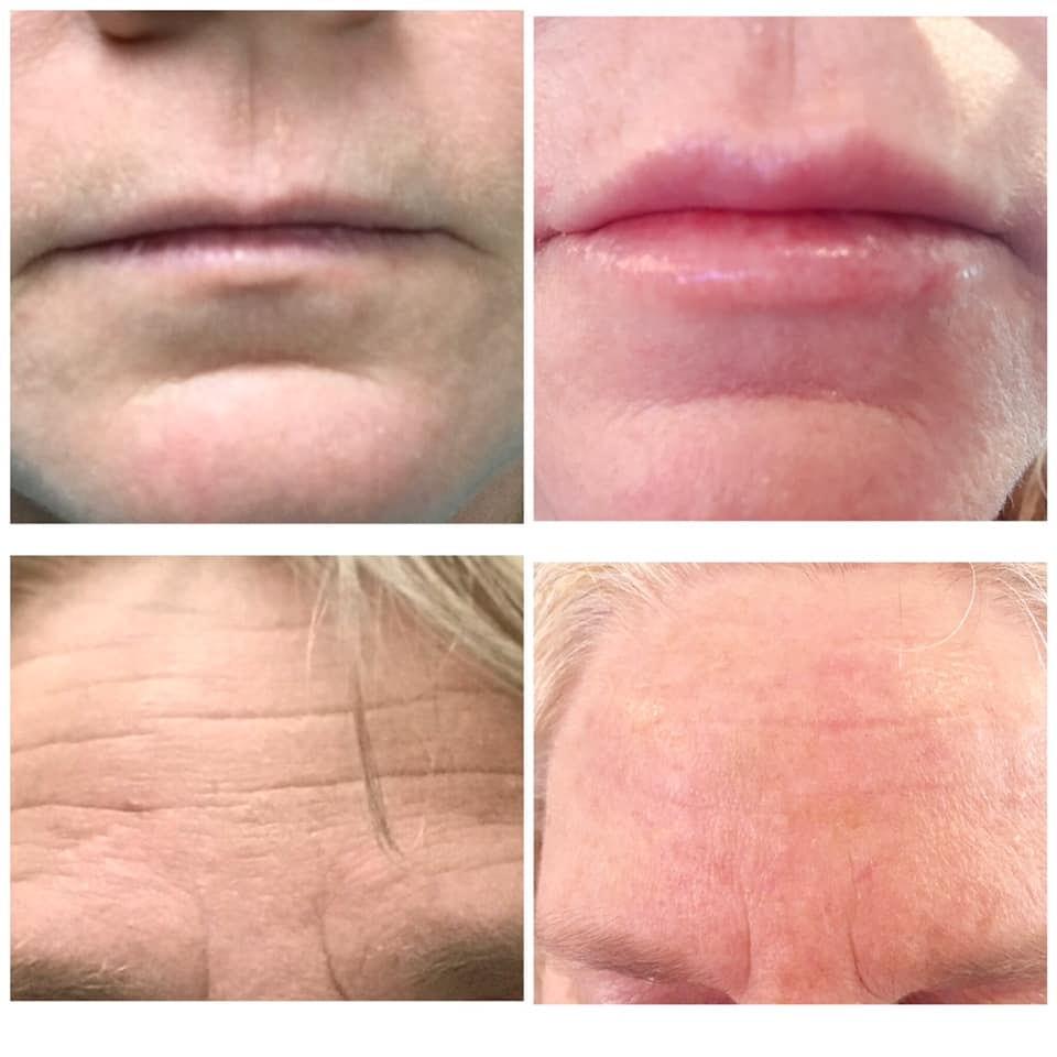 Botox 11's, Botox Crows Feet, Botox Wrinkles Forehead, Botox Cost, Botox, Anti Wrinkle Injection